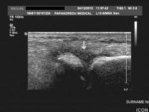 Εικόνα 6: Πάχυνση του αρθρικού υμένα της μεταταρσοφαλαγγικής άρθρωσης του τρίτου δακτύλου του δεξιού άκρου πόδα (βέλος). Ίδιο περιστατικό.