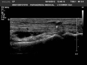 Εικόνα 8: Πάχυνση του ελύτρου (λευκό βέλος) και υγρό στο έλυτρο (μαύρο βέλος) των καμπτήρων τενόντων του δείκτη της αριστερής άκρας χειρός.
